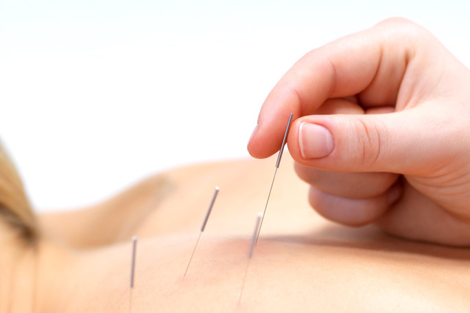 acupuncture therapy london ontario
